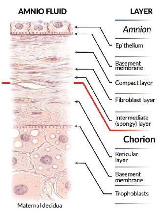 amniotic structure