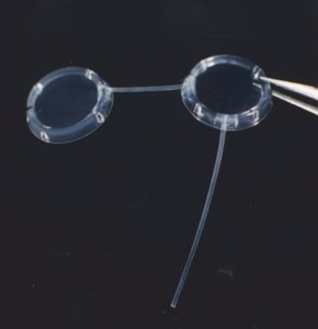 Molteno® Double Plate Implant (right eye shown)